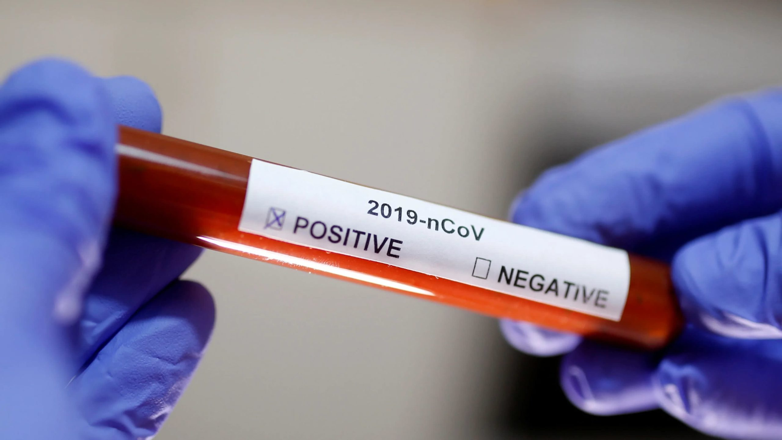 South Korean firm develop a test that detects coronavirus in 10 minutes
