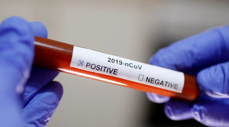South Korea firm develop a test that detects coronavirus in 10 minutes