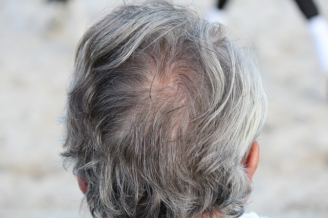 Grey Hair Causes, Home Remedies and Best Hair colors | Grey ...
