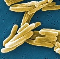 Mycobacterium tuberculosis bacteria (CDC)