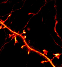 STED image of a nerve cell in the upper brain layer of a living mouse (Max Planck Institute for Biophysical Chemistry)