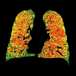 Parametric response mapping lung images (Imbio)