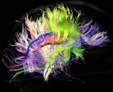 3-D brain wiring illustration