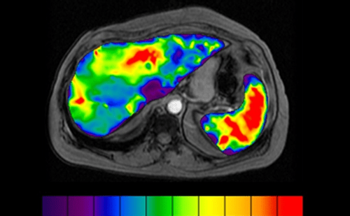 MR Touch liver scan