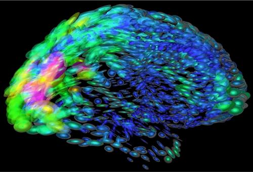 Brain map illustration