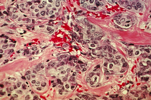 Breast cancer cells