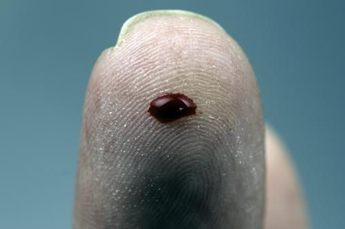 Drop of blood on finger