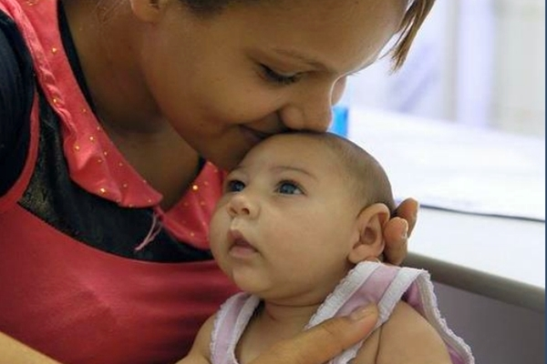 Baby with microcephaly
