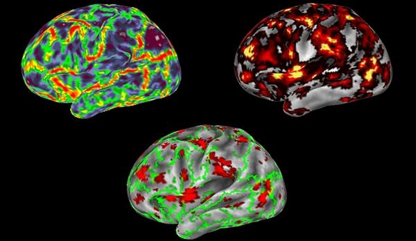 Functional MRI images of brain