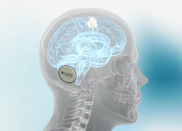 CorTec Brain Interchange