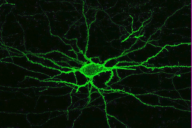 Nerve cell image
