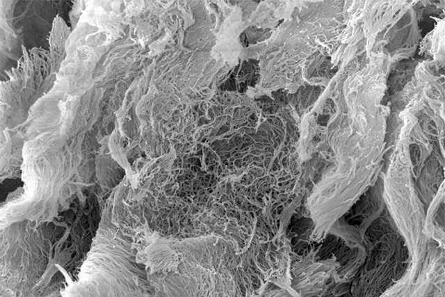 Microscopic view of StinGel