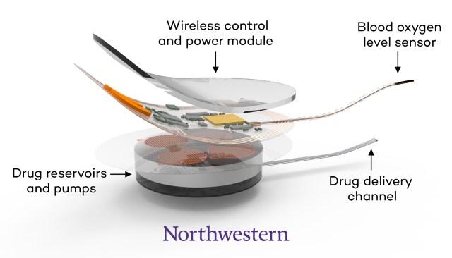 Overdose rescue device