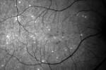 DARC retinal scan