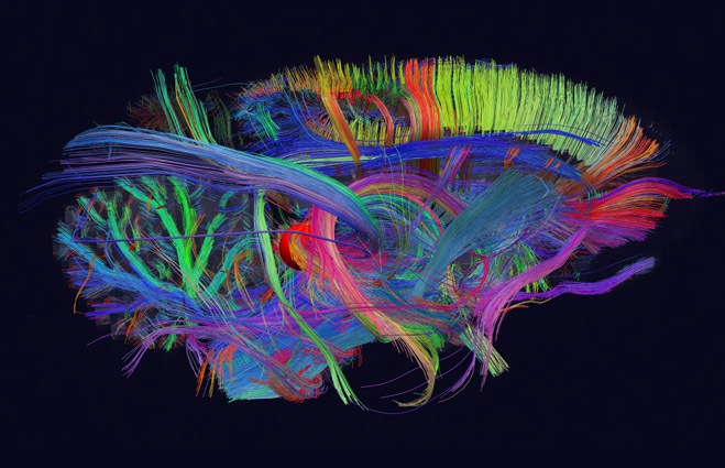 3d maps of neuron connections