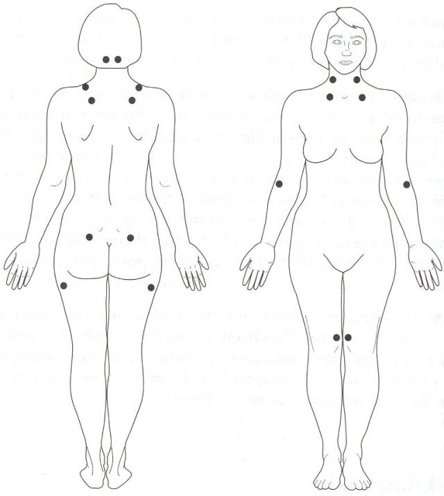 Front and back views of a nude woman showing FMS tender points
