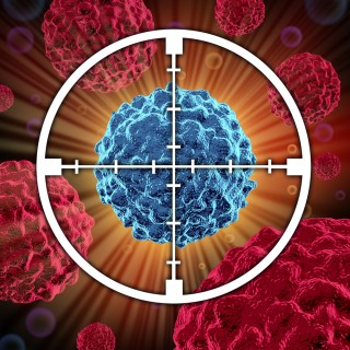 CellMax Life can identify cancer cells earlier, which may be a really big deal. (illustration courtesy Shutterstock)