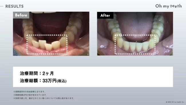 マウスピース矯正 Oh my teethの症例