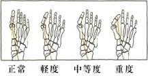 ケアソク、外反母趾の測り方
