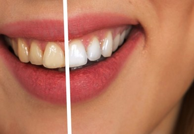 11 Things That Stain Your Teeth The Most - How to Minimise Staining? - Tech Urdu