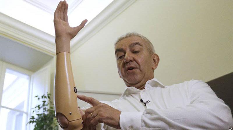 Cientistas italianos desenvolvem mão robótica mais leve e barata