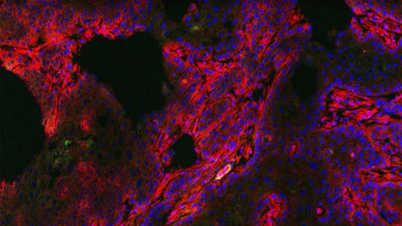 Diagnóstico do câncer de mama agora é feito com uma pílula que faz os tumores brilharem
