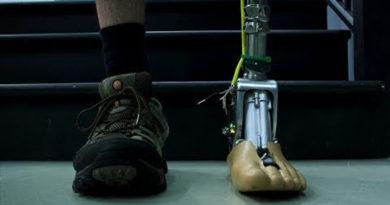 Empresa desenvolve prótese inteligente que se adapata a qualquer terreno