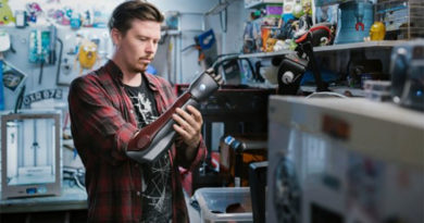 Gamer possui braço biônico igual de personagem de seu videogame favorito