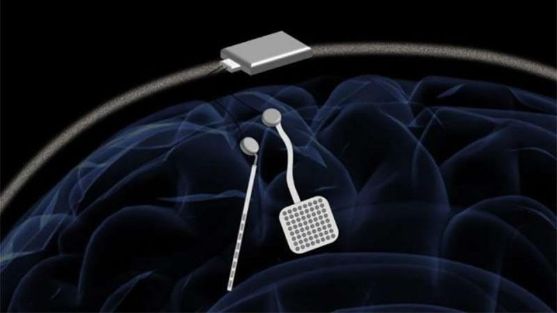 Engenheiros criam Marcapasso para o cérebro pra ajudar a tratar distúrbios neurológicos