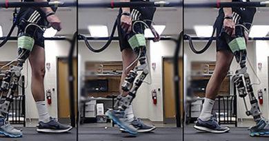 Próteses de pernas usam inteligência artificial para ajudar pacientes a andar melhor e mais rápido