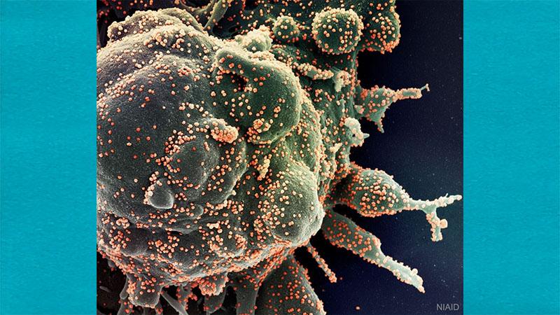 Nasa divulga imagem de célula humana sendo atacada pelo vírus da COVID-19