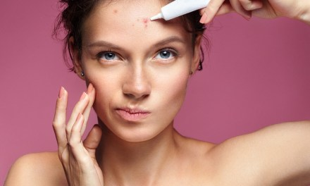 Tips on Healing Acne Scars and How to Prevent Them From Coming Back