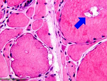 inclusion body mysositis