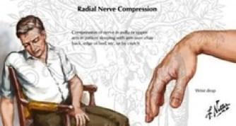 radial-palsy-image