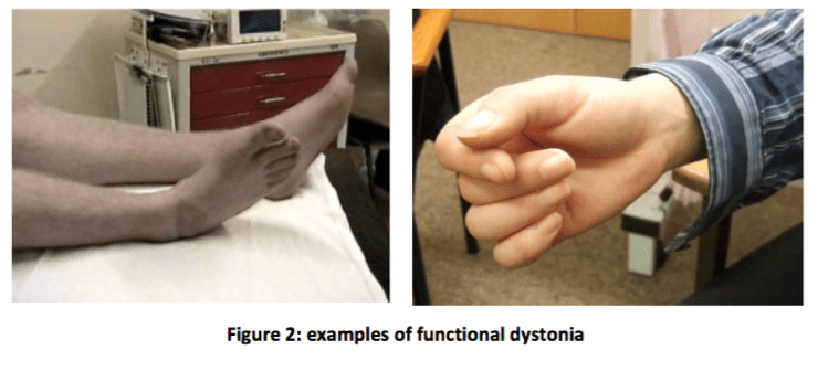 functional dystonia image