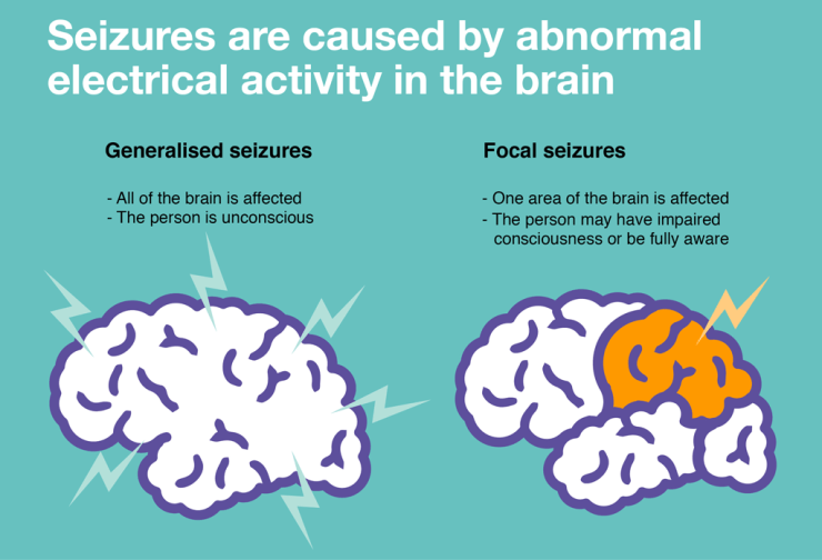 infographic-abnormal-activity