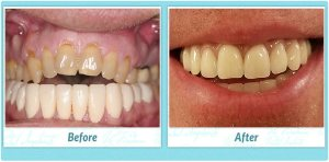 Dental Implants Smile Gallery Image of A.J.