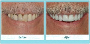 Dental Implant Smile Gallery Image of B.F.