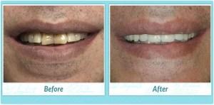 Dental Implant Smile Gallery Image of L.B.