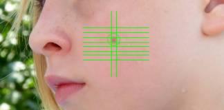 IA-dermatologia