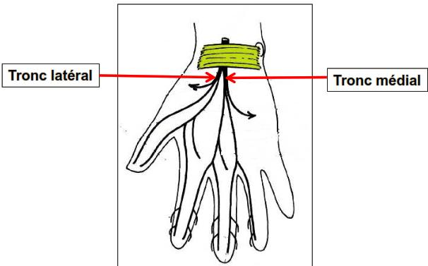 Branches terminales