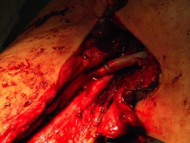 L' artère axillaire