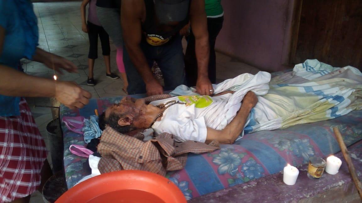 Adulto mayor es arrollado durante procesión de Viernes Santo en Condega.