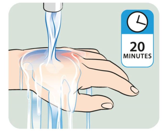 Treat minor burns with simple home remedies