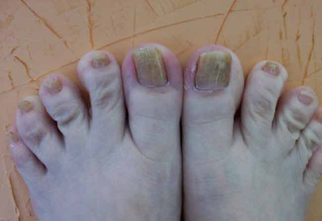 How to Get Rid of Yellow Toenails Sitting at the Comfort of Your Home