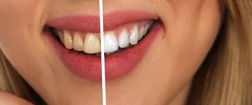 Alimenti nemici dei denti