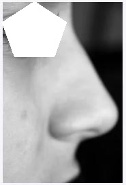 Perfiloplastia buscando el rostro simetrico, Perfiloplastia buscando el rostro simétrico, Tendenciasdebelleza, Tendenciasdebelleza