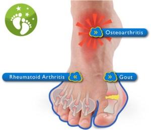 Surgery for Arthritis in Feet  Dr Carollo Shelby Twp MI