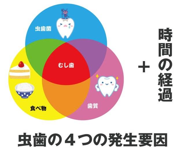 虫歯の4つの発生要因
