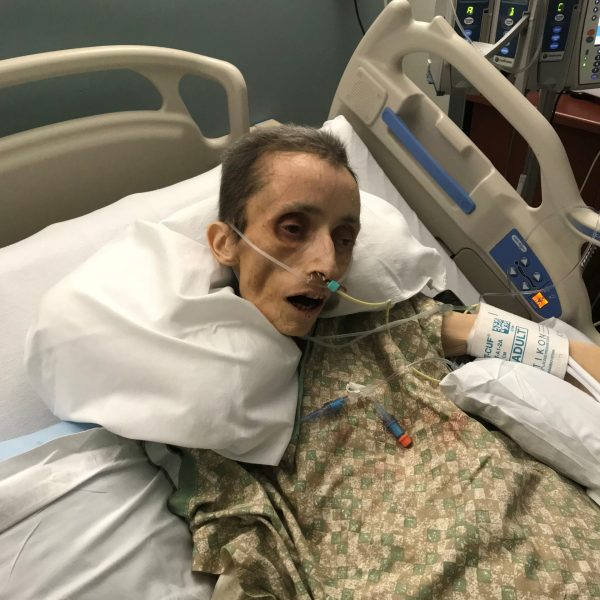 Teresa, January 21, 2019 - One of the last photos of her alive. (The red on her gown is popsicle, NOT blood.)